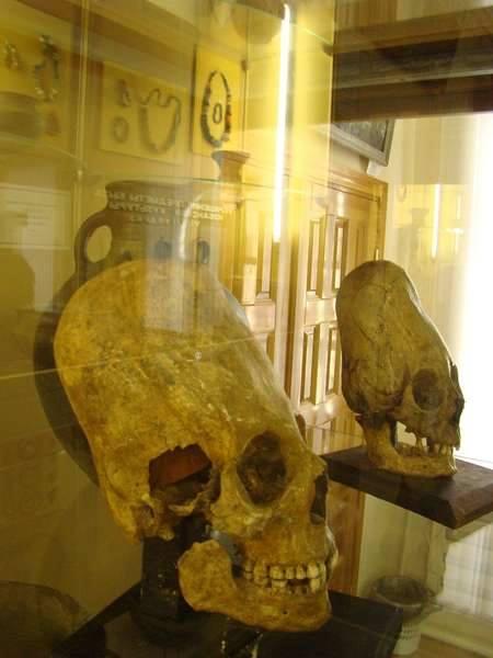 craneos alargados de un museo de Ucrania Roots Race Research