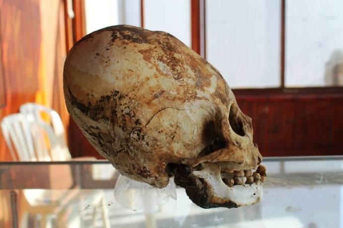 Craneo largo Paracas mujer pelirroja museo Paracas